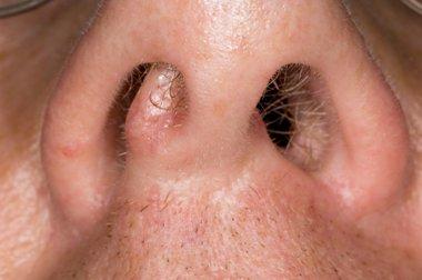 papillomas inside nose cancer pelve feminina