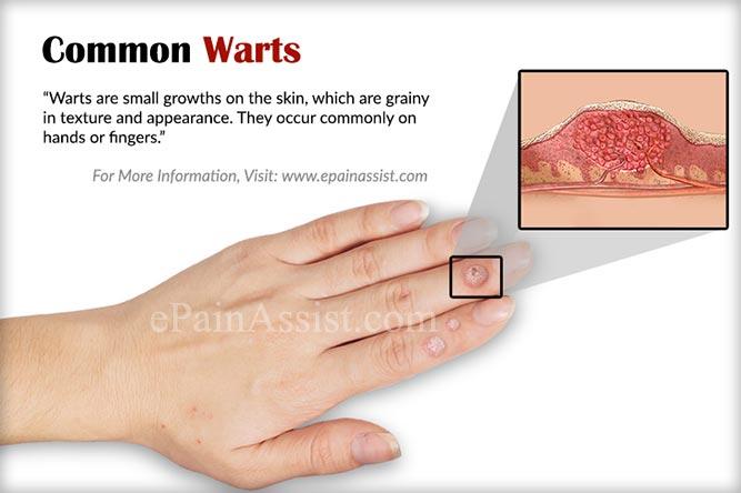 warts on hands treatment at home paraziti intestinali copil 2 ani