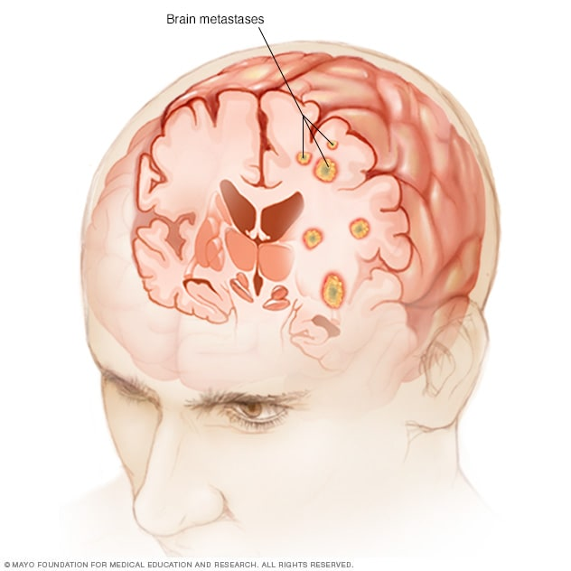 cancer cerebral por metastasis