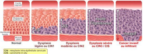 cancer col uterin c3