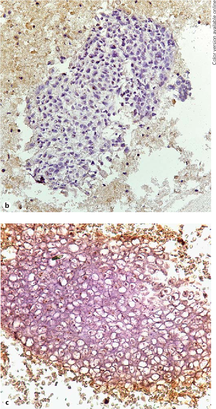 carcinoma da papilloma virus uvula papilloma surgery