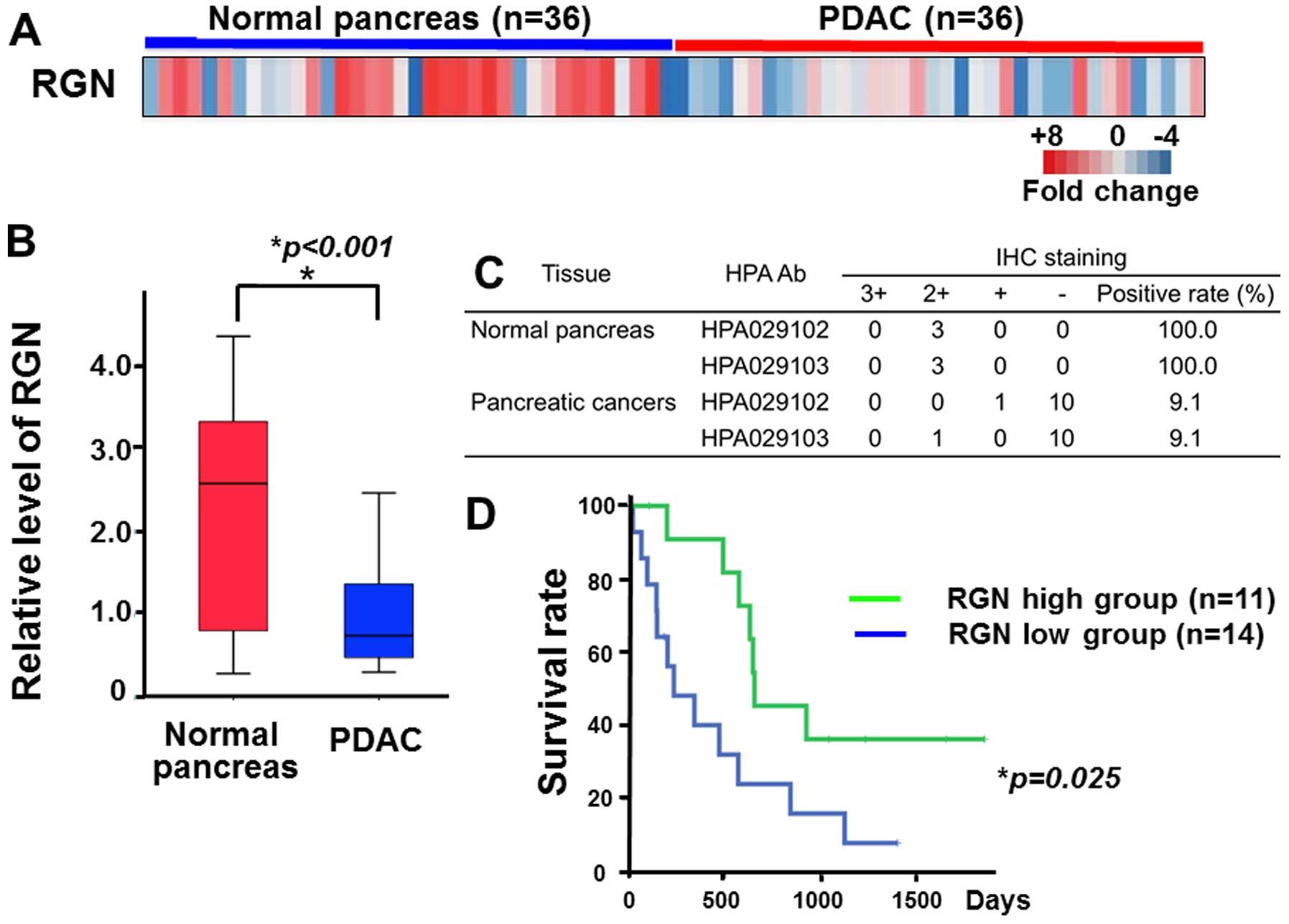 Cancer pancreatic - Wikipedia