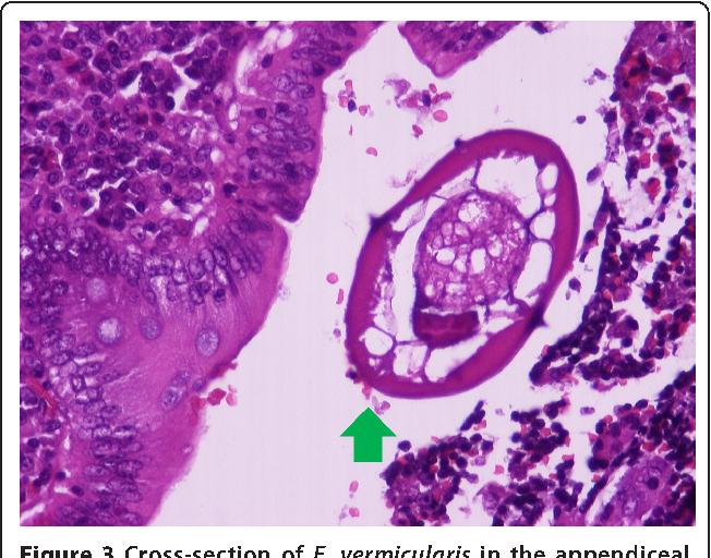 is human papilloma virus always sexually transmitted