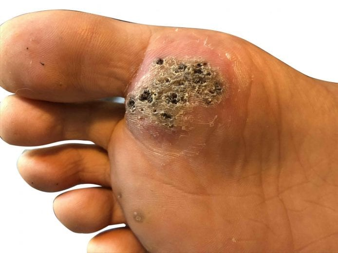wart on foot bottom pictures