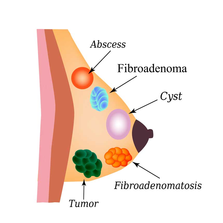 causes of papilloma in the breast