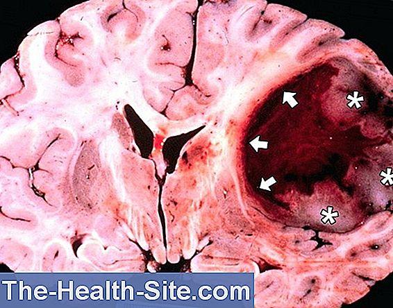 cauze cancer la creier