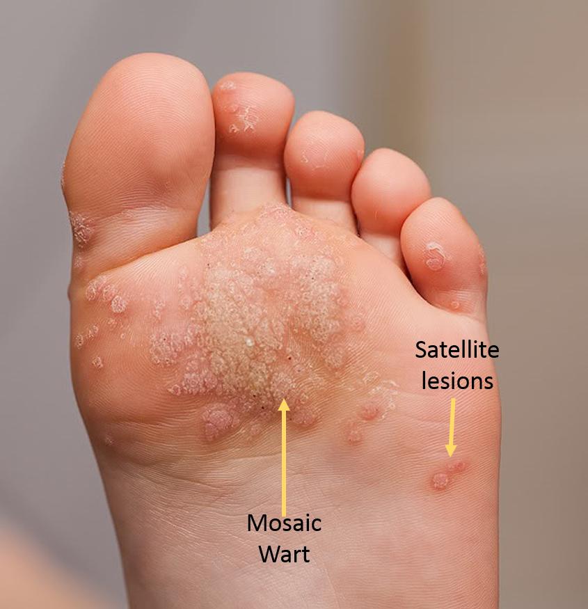 verruca athletes foot hpv virus tem cura