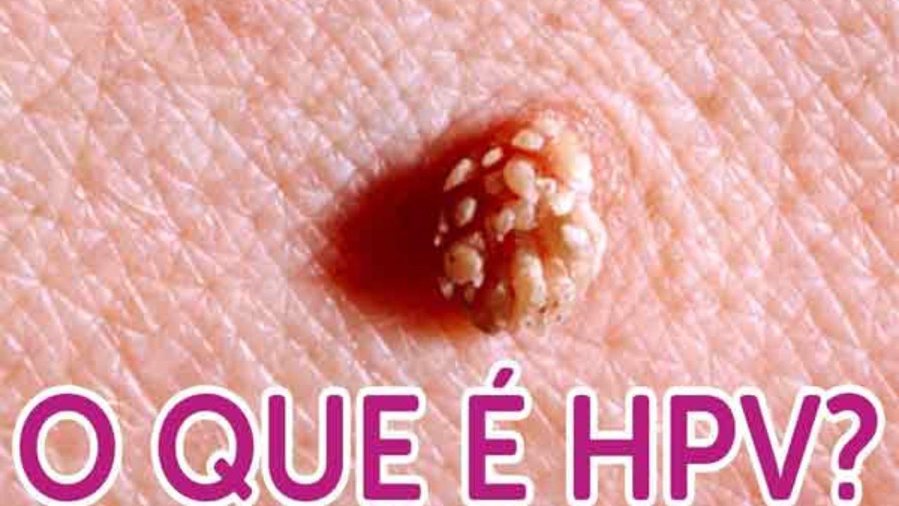 hpv cervical cancer odds ratio papiloma uvula tratamiento