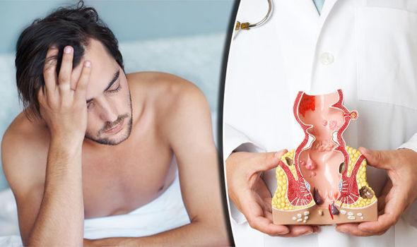 can hpv virus cause rectal cancer tratarea papiloma virus