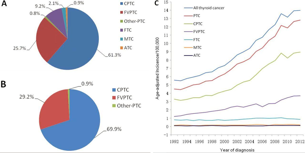 papillary thyroid carcinoma epidemiology