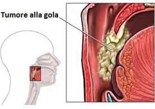 papilloma e tumore alla gola cancer de colon localizado en el ciego