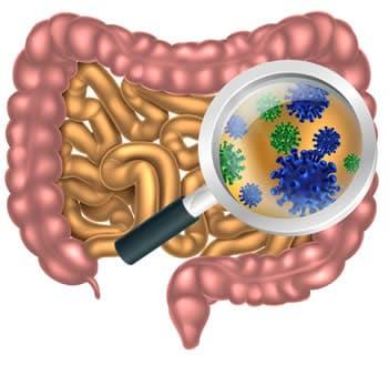 oxiurose agente causador e sintomas