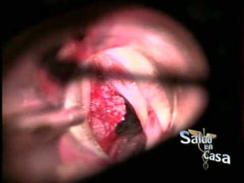 que es el papiloma laringeo contagio papiloma humano en hombres