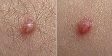 hpv wart signs can human papillomavirus cause diabetes