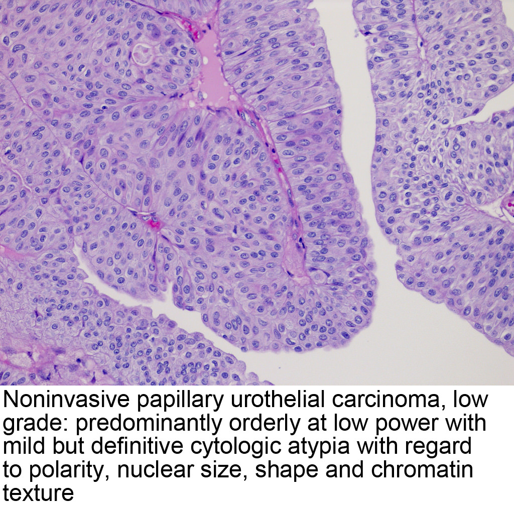 papilloma nasal cavity 7 ciuperci pret