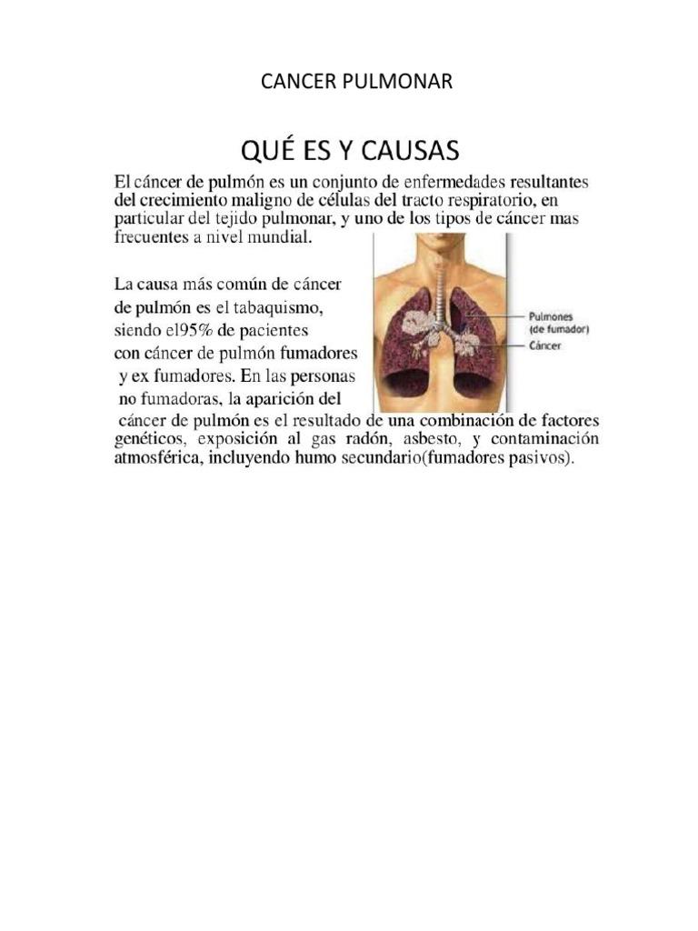 cancer pulmonar q es cancer benign de colon