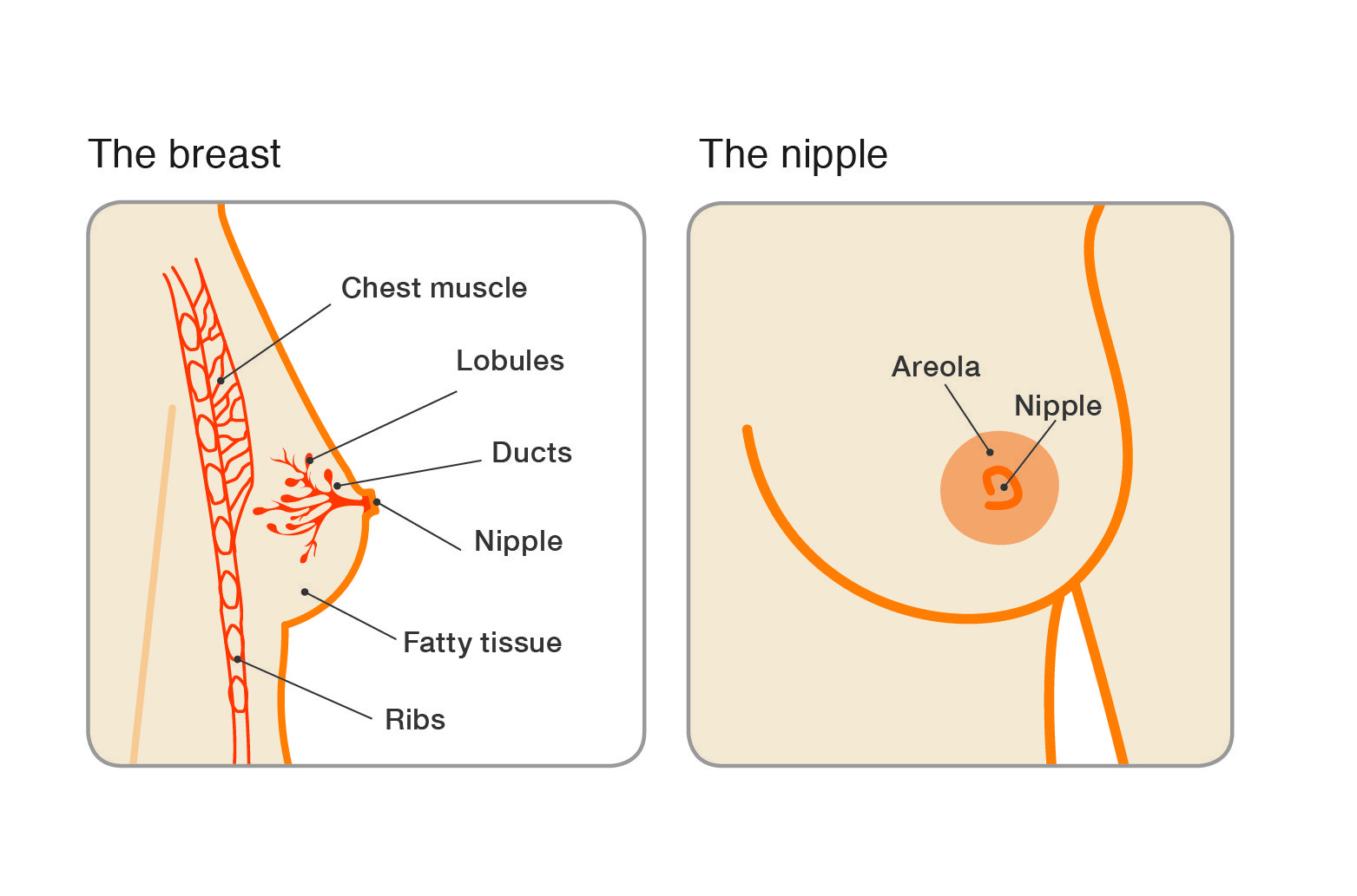intraductal papilloma breast treatment define papilloma colli