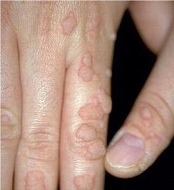 remede papillomavirus homme