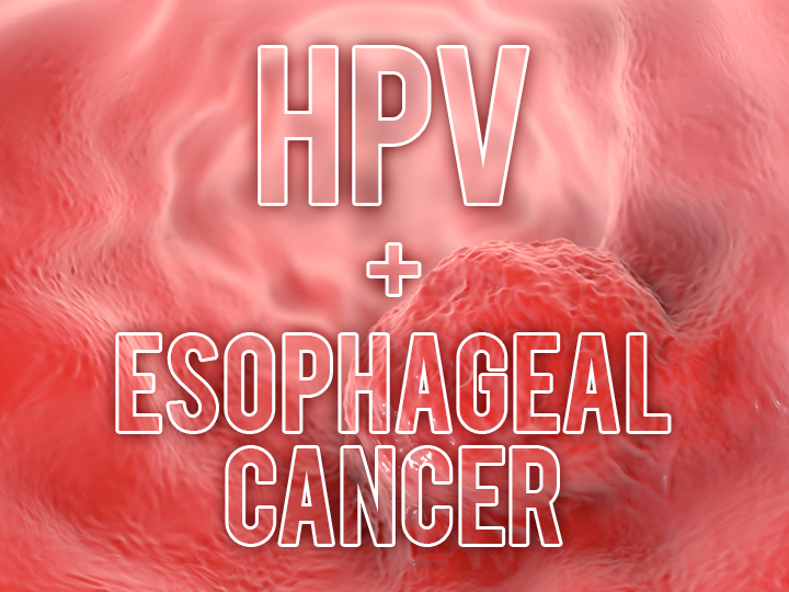 can you get esophageal cancer from hpv parazit rapper
