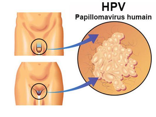 virus del papilloma umano contagio