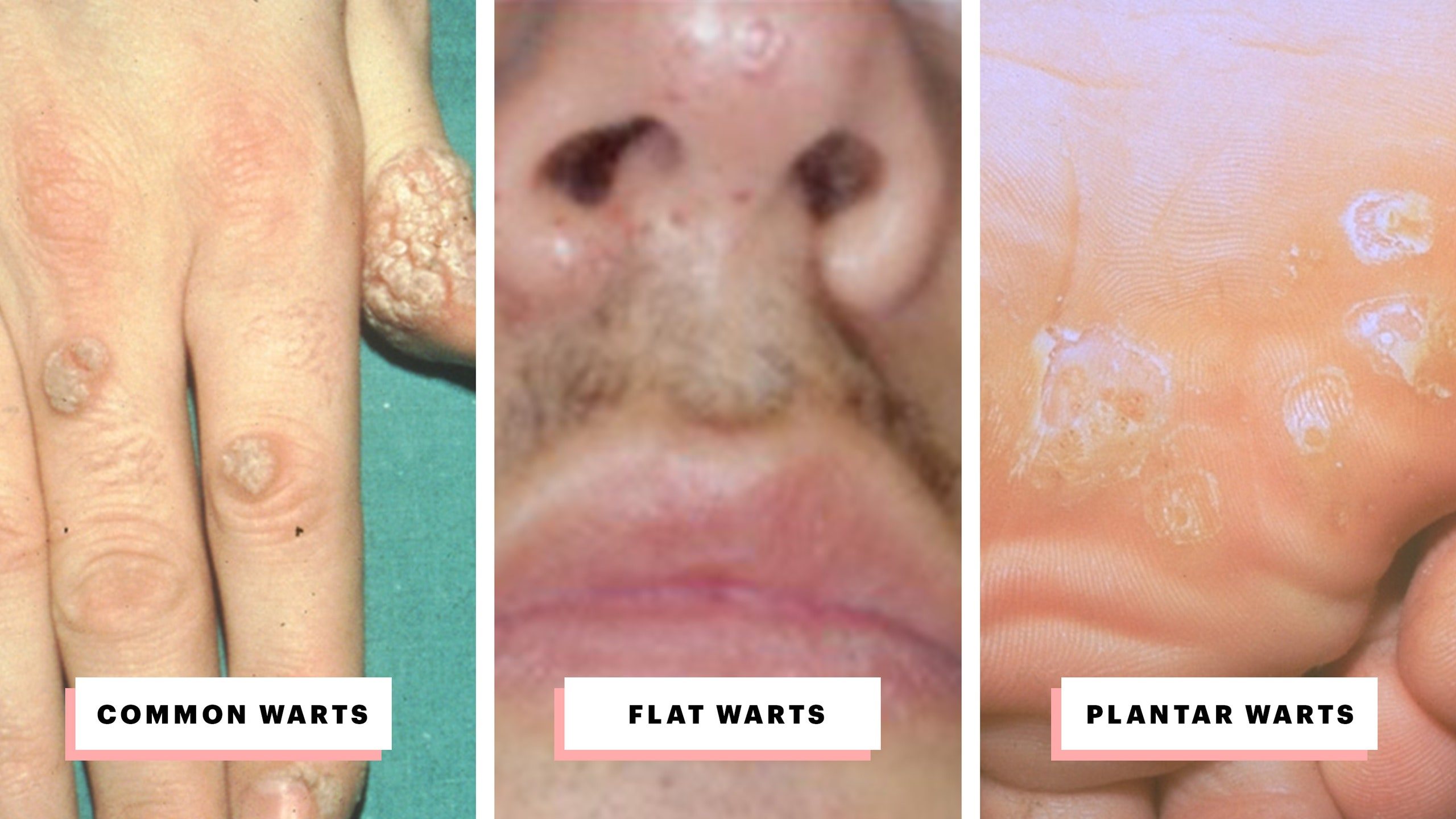 can warts on hands be transferred to genital area