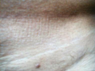 enterobius vermicularis scotch test virus del papiloma humano sus sintomas