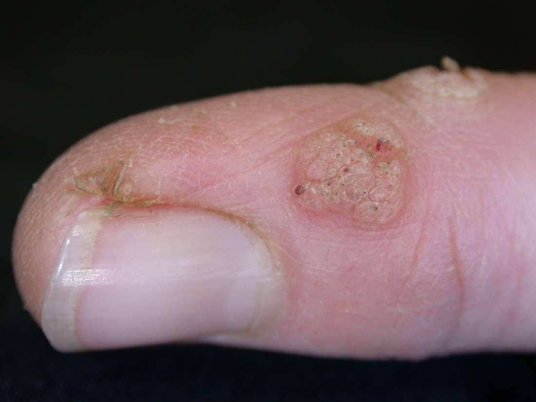 wart virus in skin