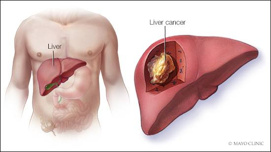tratament oxiuri copil 3 ani intraductal papilloma in both breasts