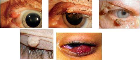 hpv virus eye problems cancerul de col uterin poate fi vindecat