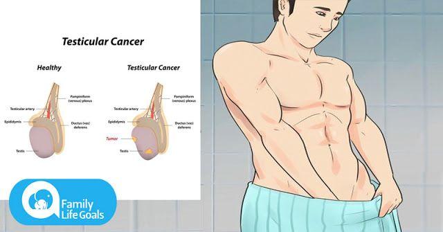 cancer testicule la barbati simptome abdominal cancer mri