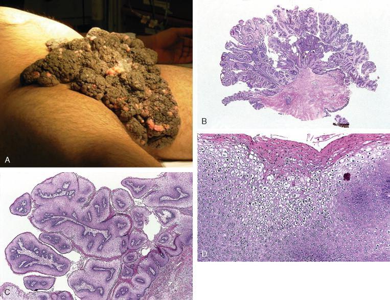 test hiv anonimo roma gastric cancer book