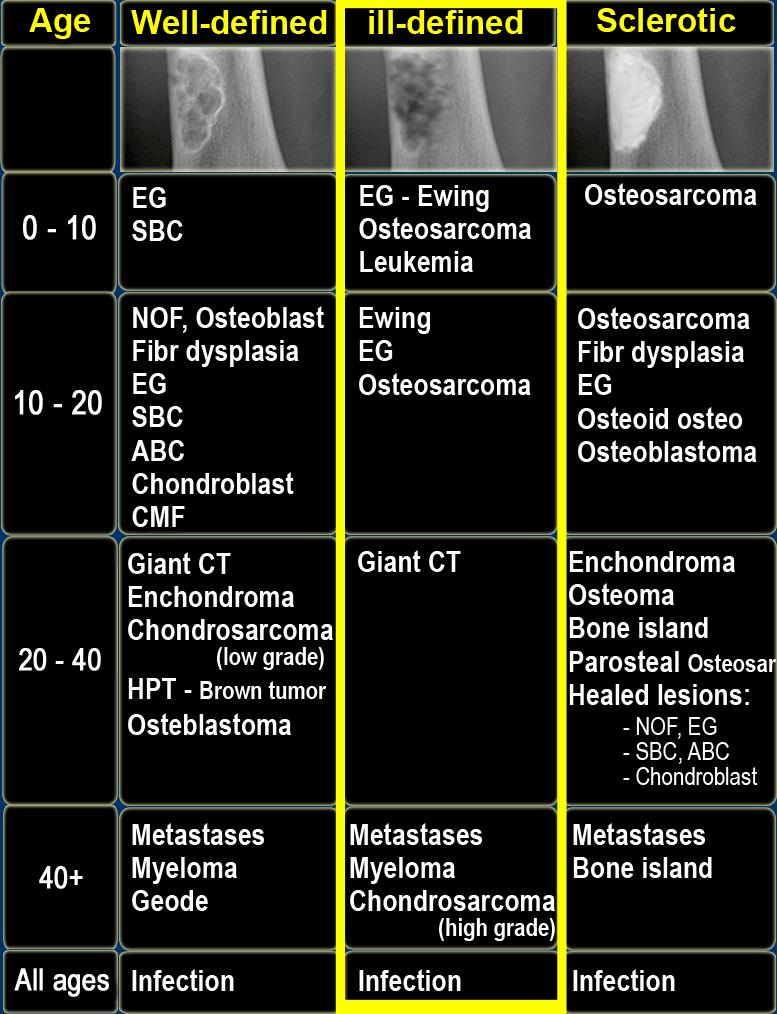 sarcoma cancer definition