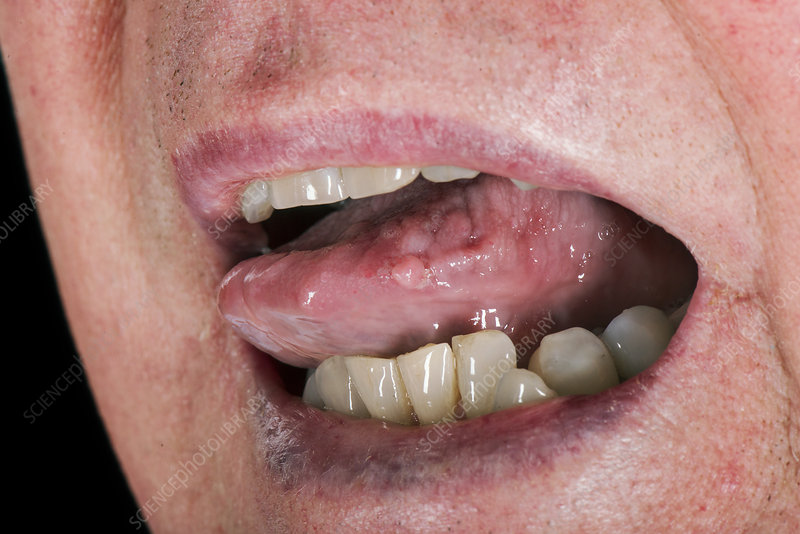 wart by mouth