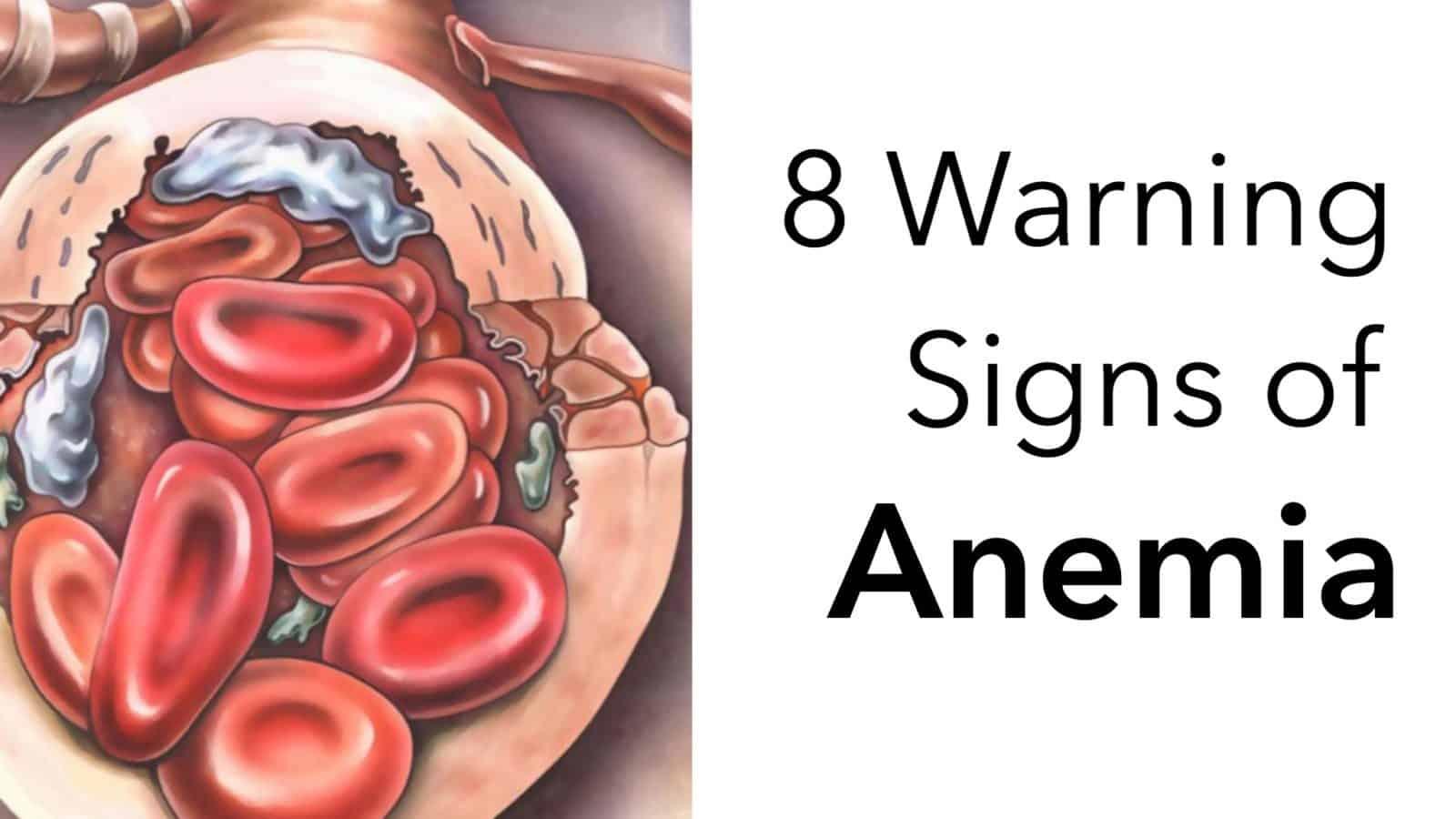 anemic dezintoxicarea ficatului cu stafide