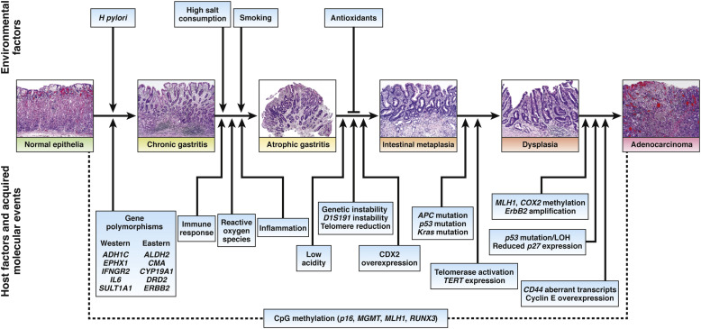 Pathophysiology of Gastric Cancer