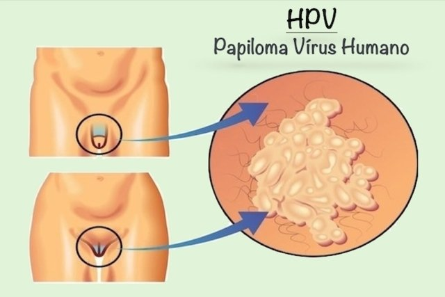 papilloma virus linguale