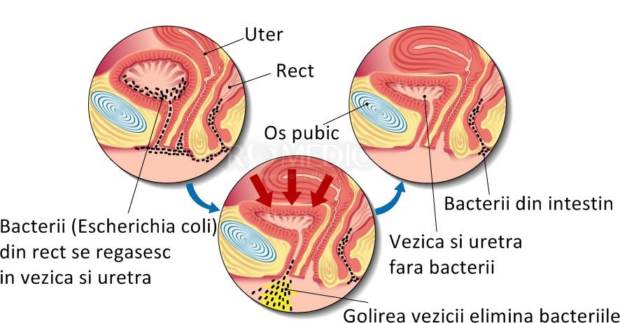bacterii marite in urina cancer limfatic stadiul 3