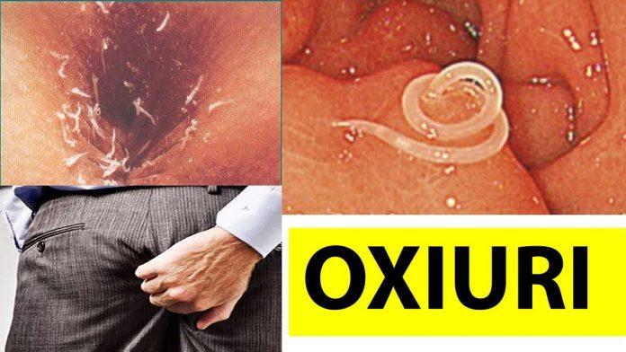 perioada de incubatie oxiuri
