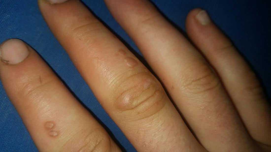 warts on hands beginning stages