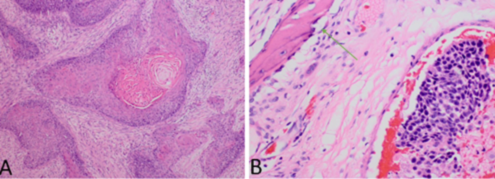 squamous cell carcinoma sinonasal papilloma
