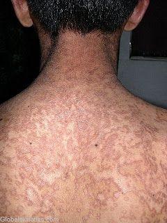 reticulated papillomatosis dermnet