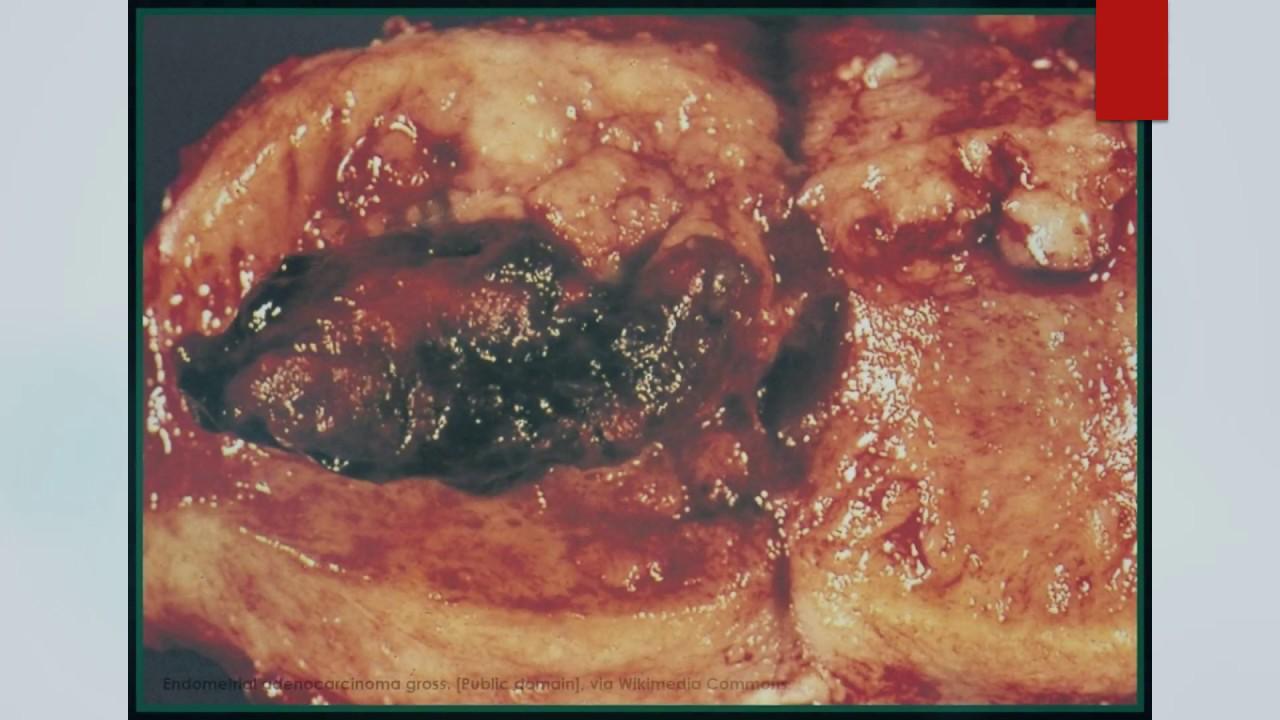 endometrial cancer rcog guidelines laryngeal papillomas