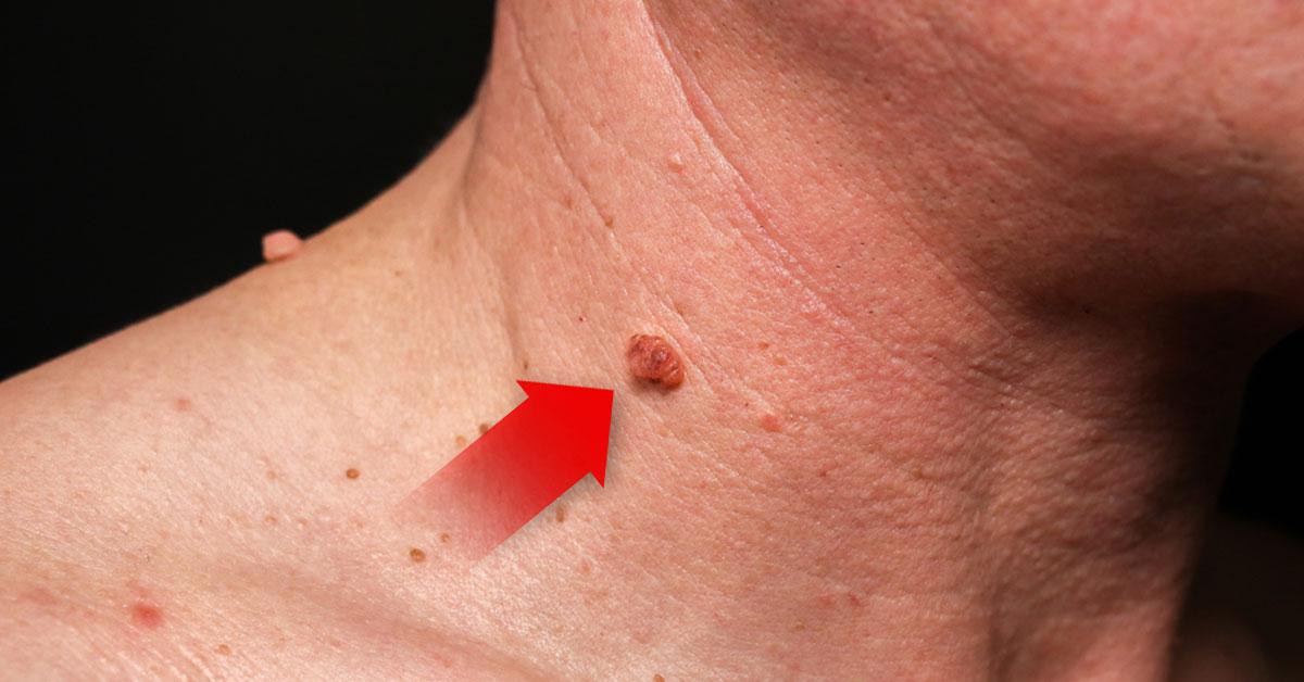 cervical cancer yellow discharge papillomavirus hpv cin 1