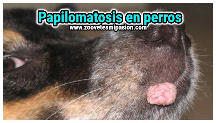 papiloma genital le papillomavirus est ce grave