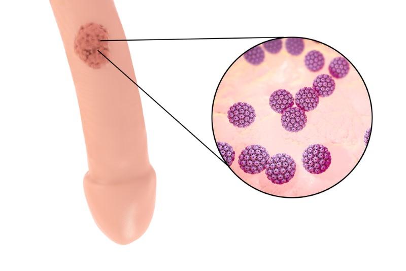 que es el papiloma humano de alto riesgo urina cancer prostata