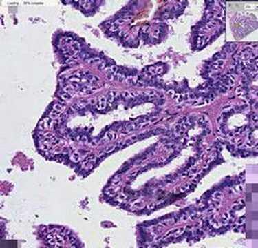 papillomavirus medical journal metastatic cancer news