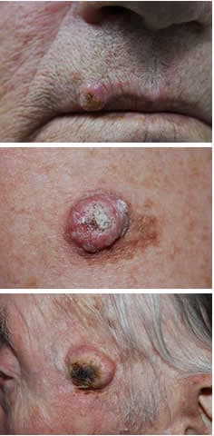 papilloma squamoso orecchio trasmissione papilloma virus mani
