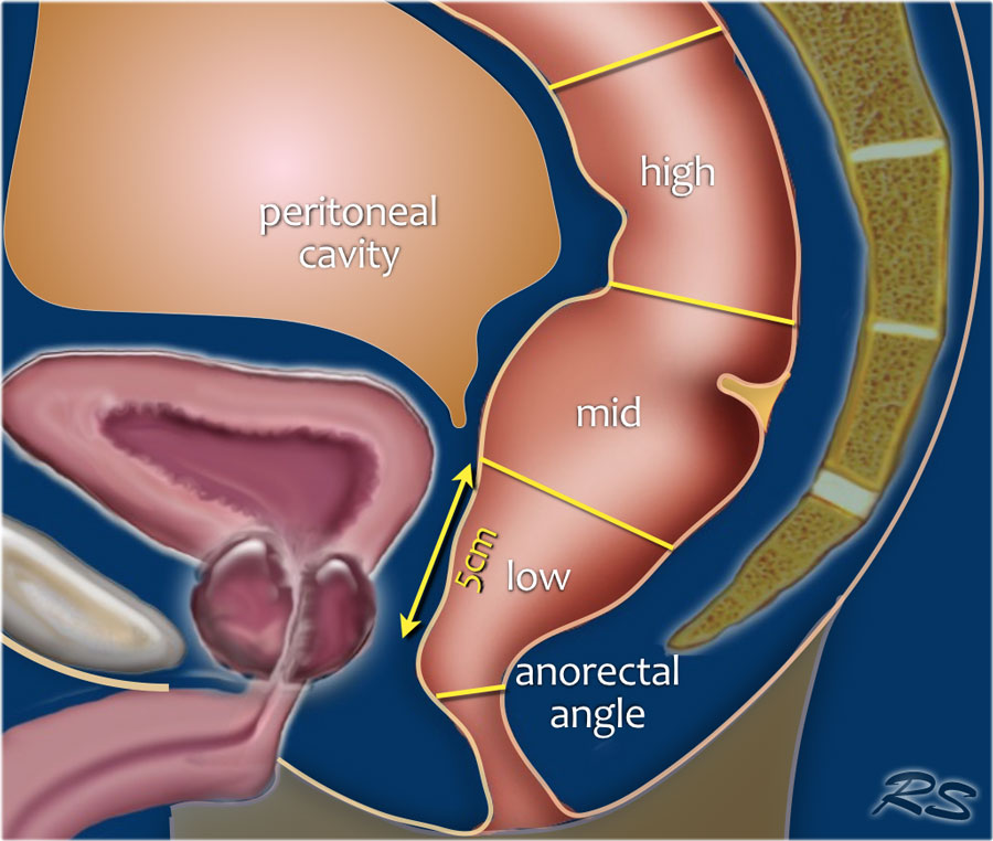 cancer of rectosigmoid junction