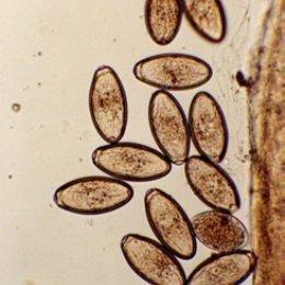 oxyuris equi huevos enterobius vermicularis qurdu