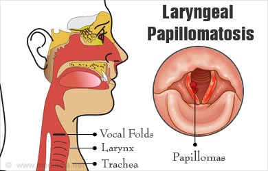 laryngeal papillomatosis diagram bacterie 2019